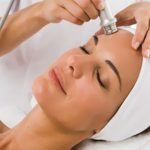 aparotologia radiofrecuencia facial